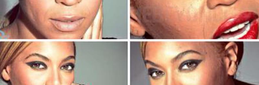 Beyoncé: boutons et peau abimée sur desphotos nonretouchées