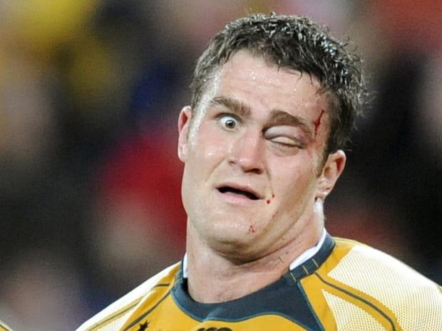 Les gueules cassées du rugby