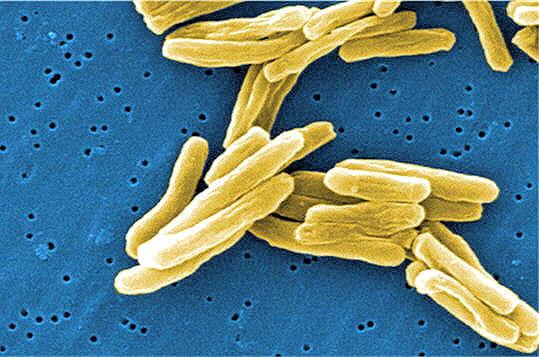 Une maladie très infectieuse