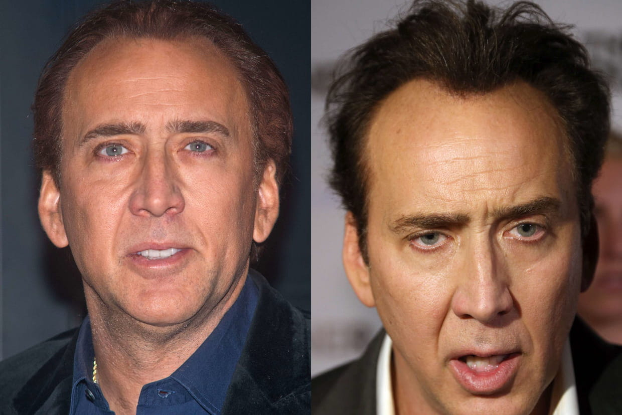 nicolas cage souhaitait camoufler sa calvitie naissante. Black Bedroom Furniture Sets. Home Design Ideas