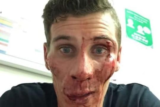 Pierre-Ambroise Bosse[PHOTO]: l'athlète dévoile son visage tuméfié
