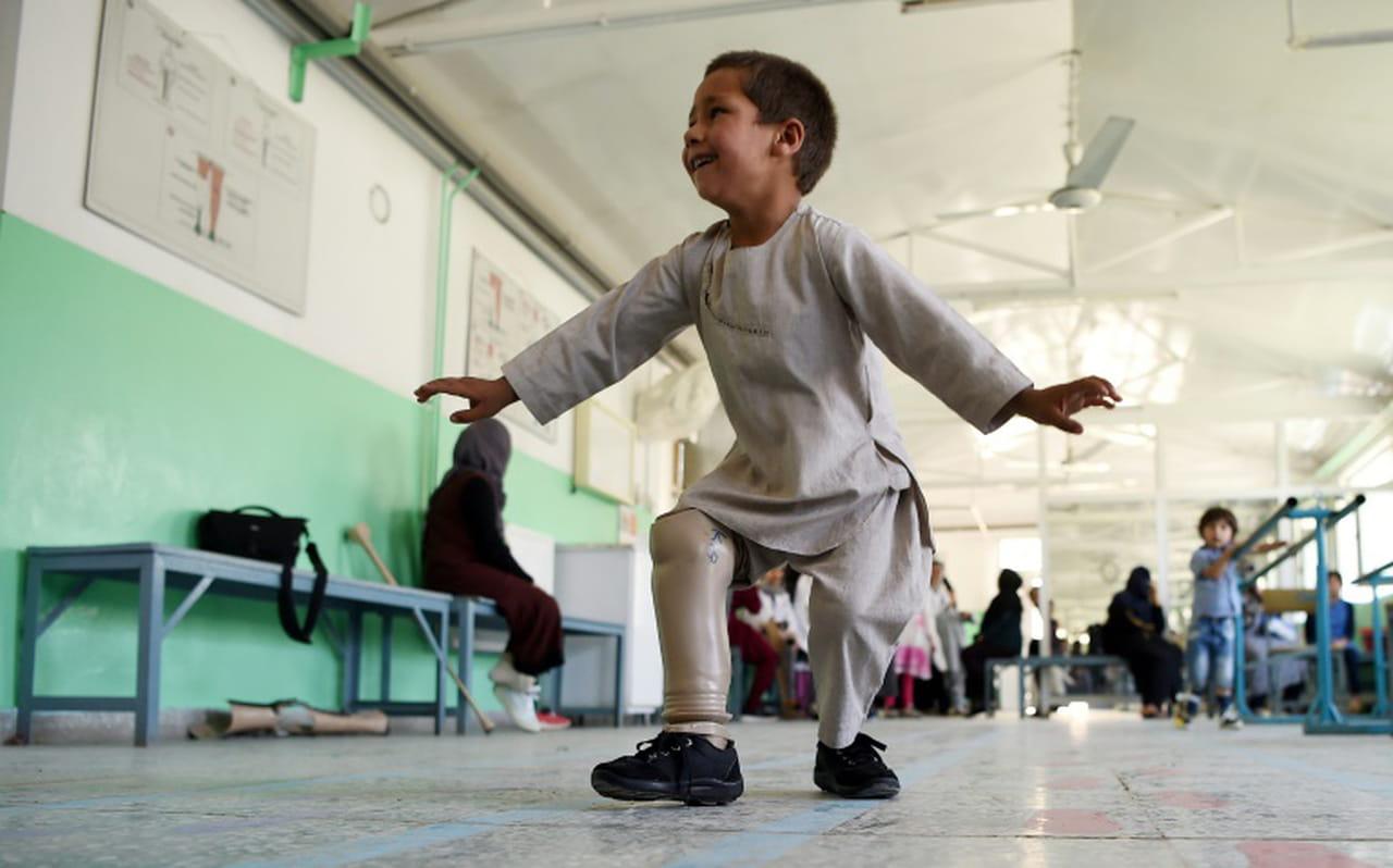 En Afghanistan, le sourire d'Ahmad, amputé de 5ans, émeut le pays