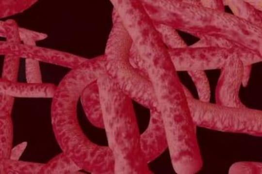 Symptômes Ebola : fausses alertes et vraisdangers