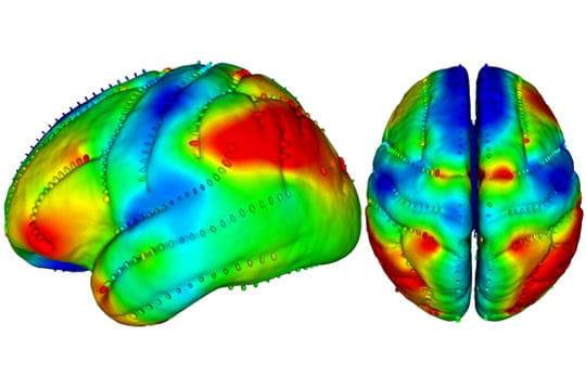 Cerveau identique ?